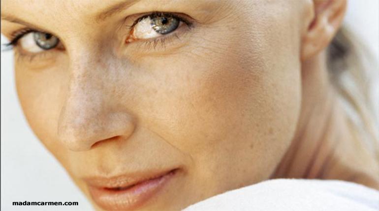 Güneş Lekelerinden Kurtulmak İçin Bakım Önerileri
